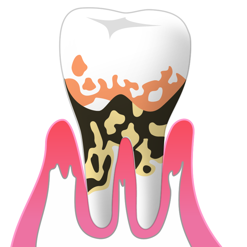 P3(重度歯周炎)