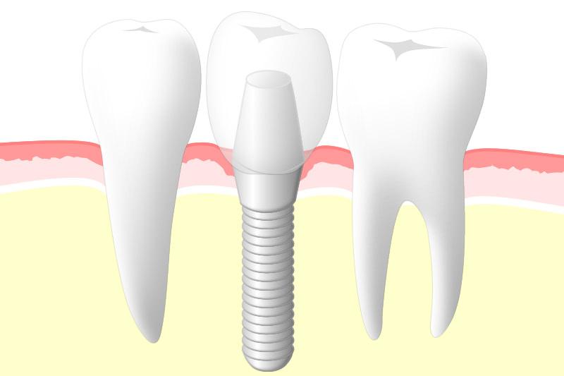 天然歯同様の噛み心地が得られます